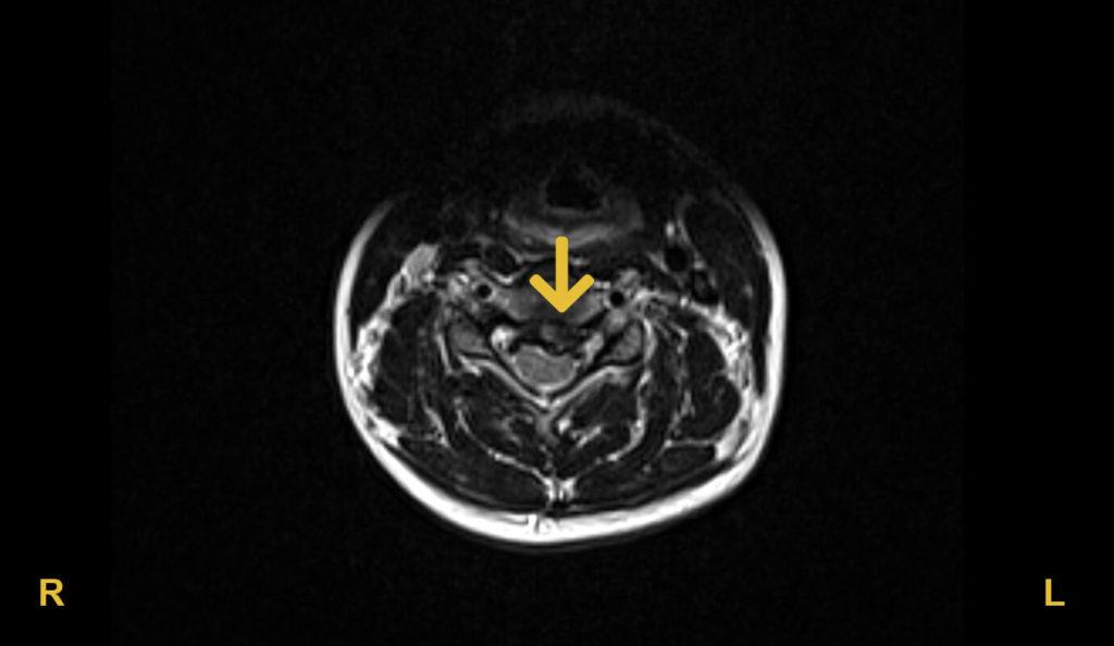 Halswirbelsäule Bandscheibenvorfall an Halswirbelkörper