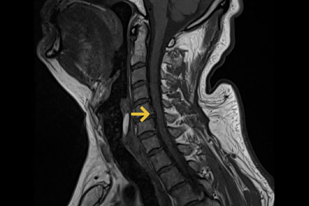 Halswirbelsaeule Cervicalstenose Foramenstenose Spinalkanalstenose